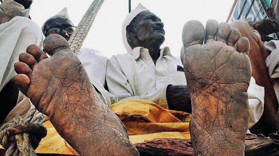 Farmer Feet 1