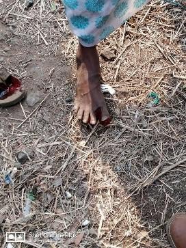 Farmer Feet 2